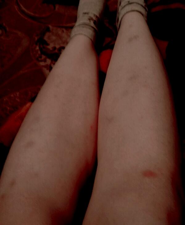 на ногах синяки фото