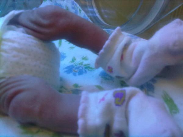 фото ножки новорождённого