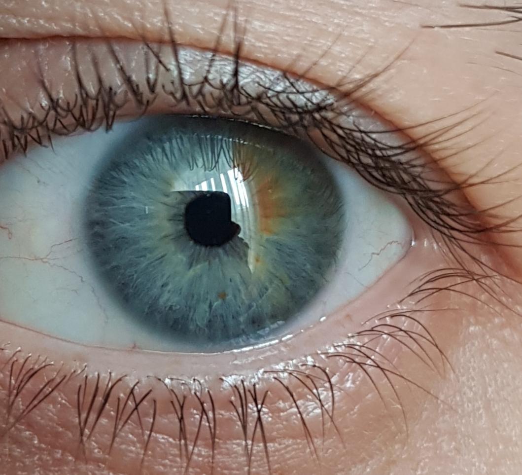 канал наложит фото все цвета глаз человека фото любой
