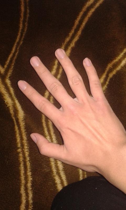 Гифка кривые пальцы