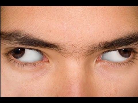 Остеопатия глаз