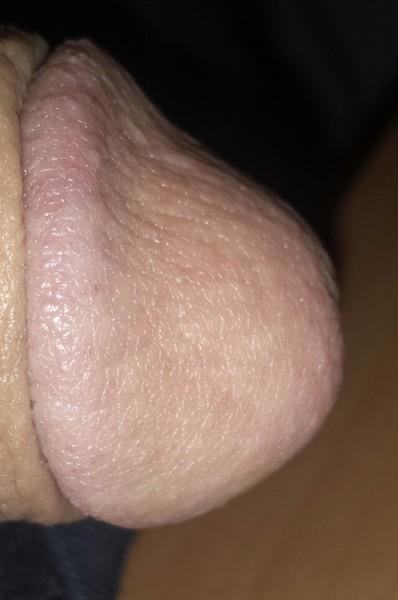 После орального секса красные высыпания на головке члена