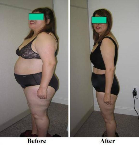 Кто Насколько Похудел От Голодания. Таблица потери веса при голодании: скорость похудения человека