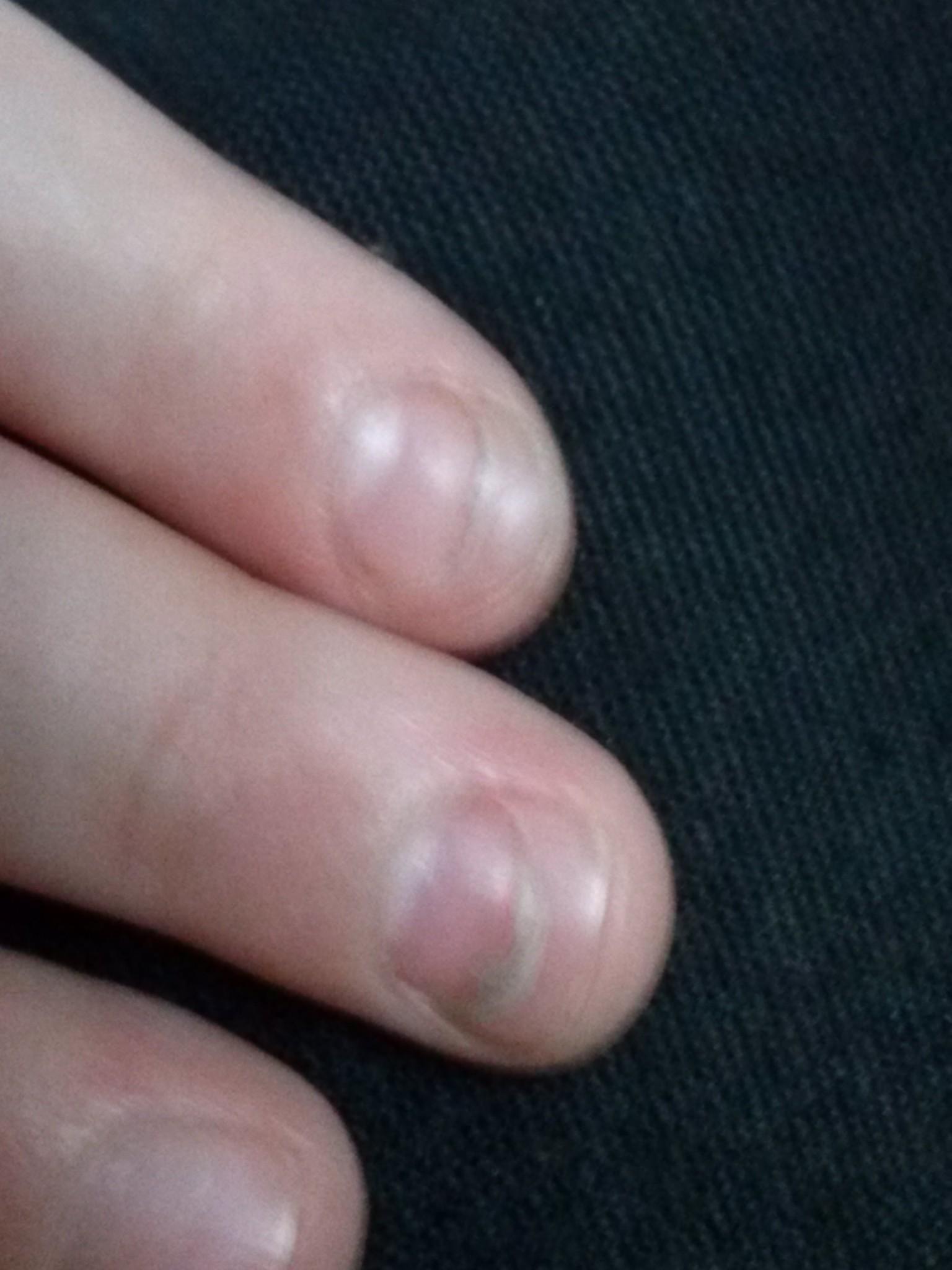 Почему слоятся ногти у ребенка на руках