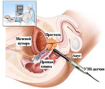 Лечение простатита массажем самостоятельно
