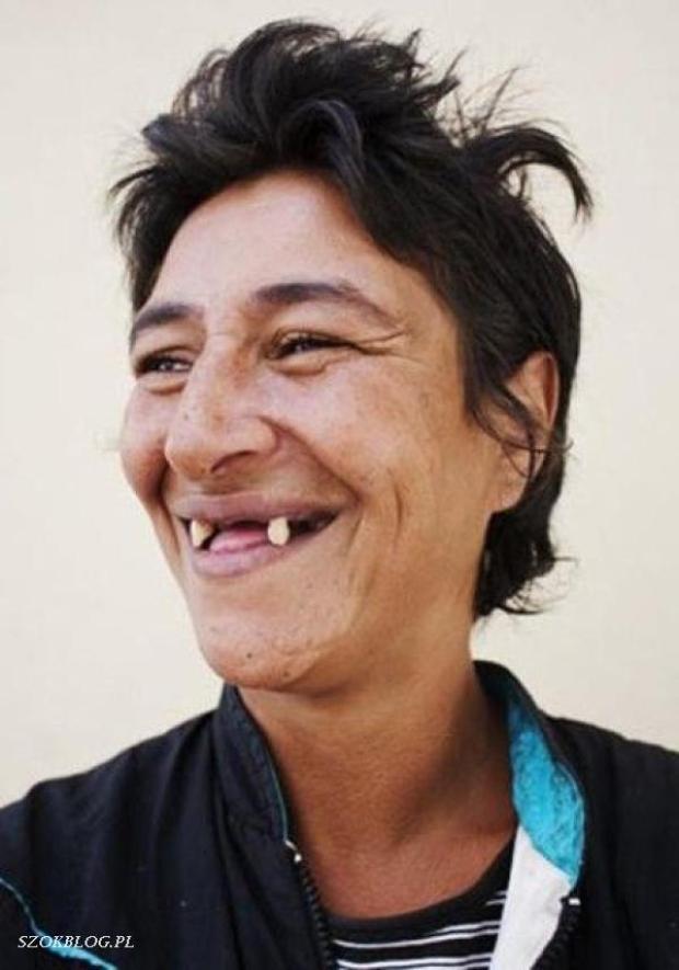 Смешные картинки человек без зубов
