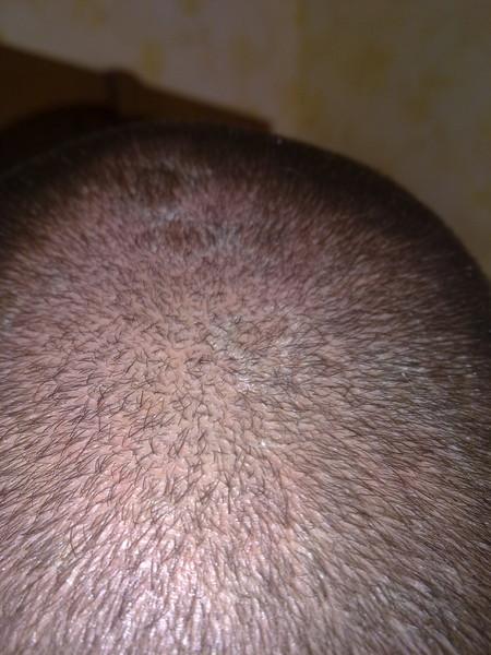 Ответы@Mail.Ru: Болячки и перхоть на голове. Чо за болячки и как ...