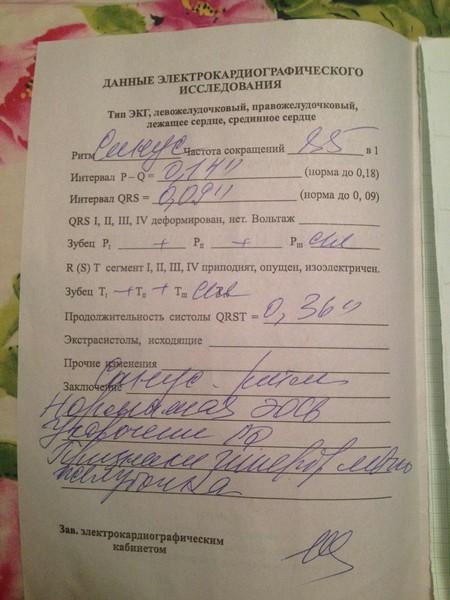 Ответы Mail.Ru: Что значит заключение моего ЭКГ, не могу понять?