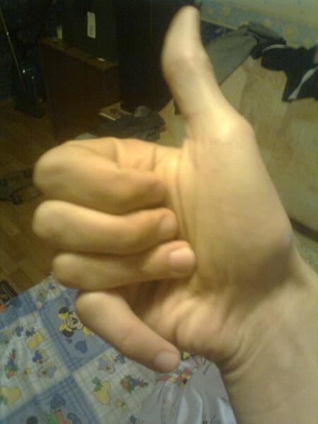 палец сломанный фото