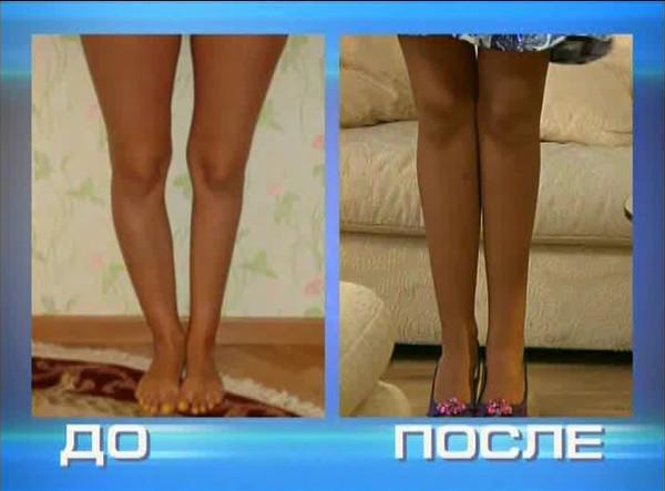 фотография мамы кто удлинил ноги с помощью упражнений отзывы фото водители
