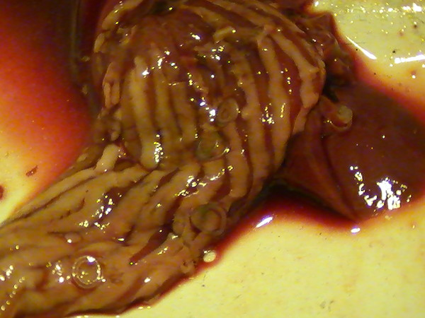 паразиты и глисты в организме человека видео