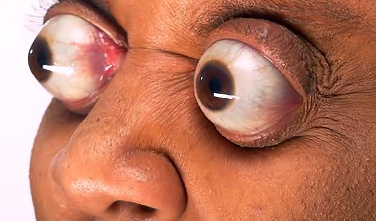 Прикольные картинки больной глаз