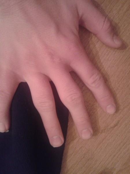 Увеличились суставы на пальцах рук фото анатомия челюстных суставов
