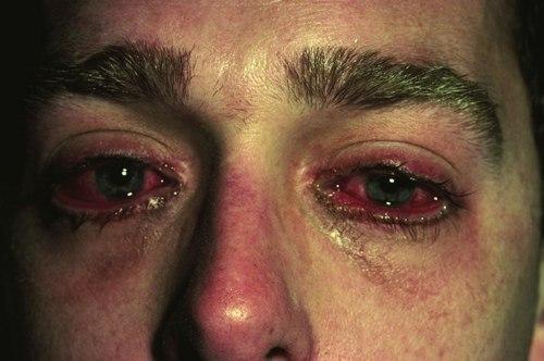 Что делать если кровь из глаз