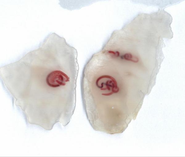 красные паразиты в организме человека фото