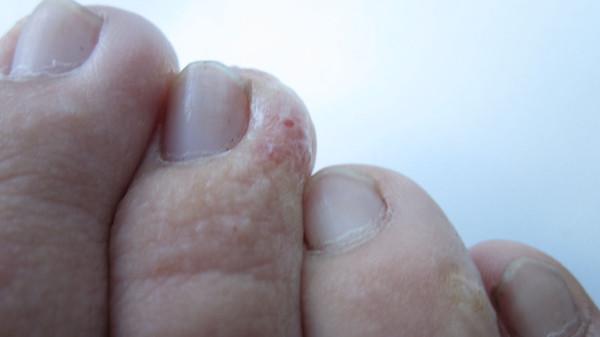 Грибок на ногах с водянистыми пузырьками