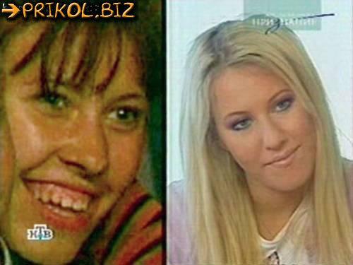 Ксения Бородина до и после пластики: фото