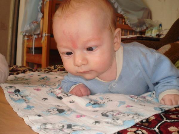 Ответы@Mail.Ru: у малыша покраснение между бровями и над глазиком ...