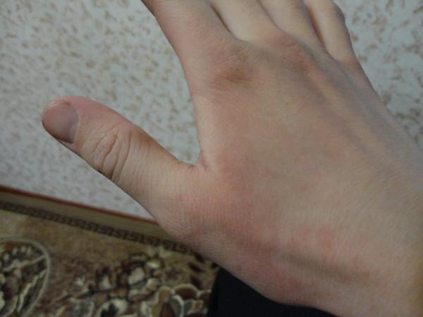 аллергия на мороз на руках фото