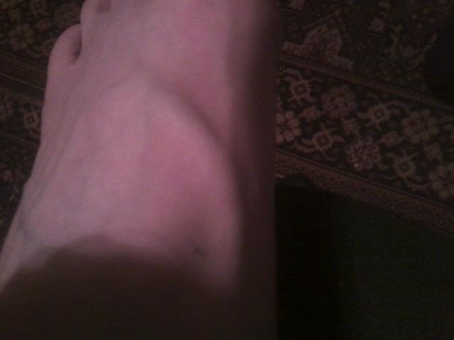 Ответы@Mail.Ru: Что это? Вздулась вена на ноге (болит).
