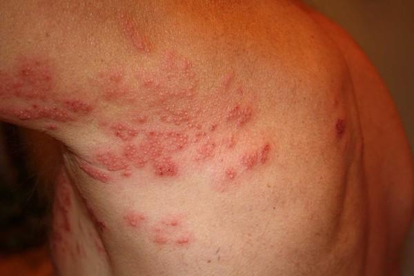 аллергия на укус клеща