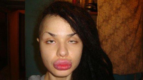 Фото девушек с губами уточкой фото 295-214