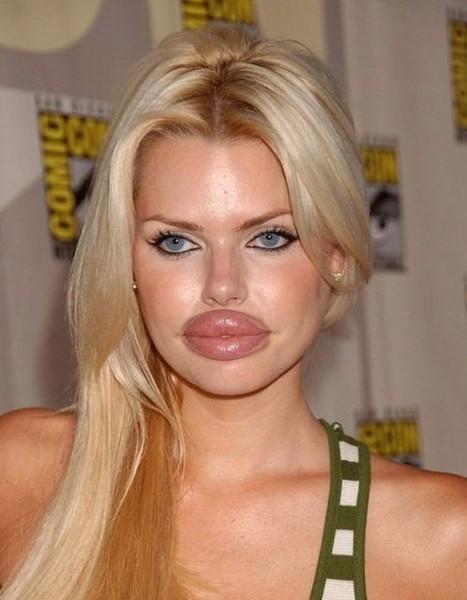 фото пухлых губ