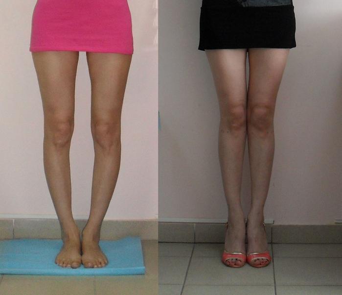 Какими должны быть правильными женские ноги фото