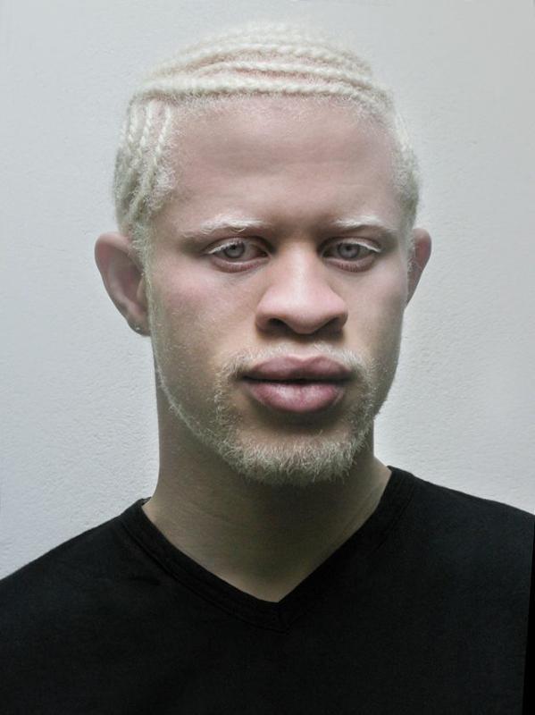 Фото альбиносов африканцев