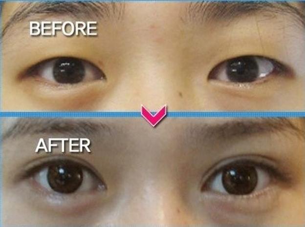 Пластическая операция по увеличению разреза глаз   форум Woman ru