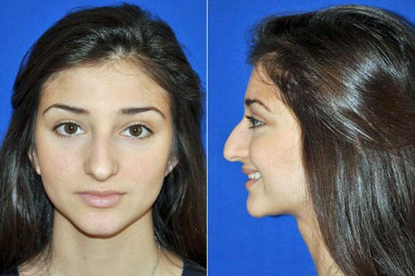 армянский нос рино фото вас