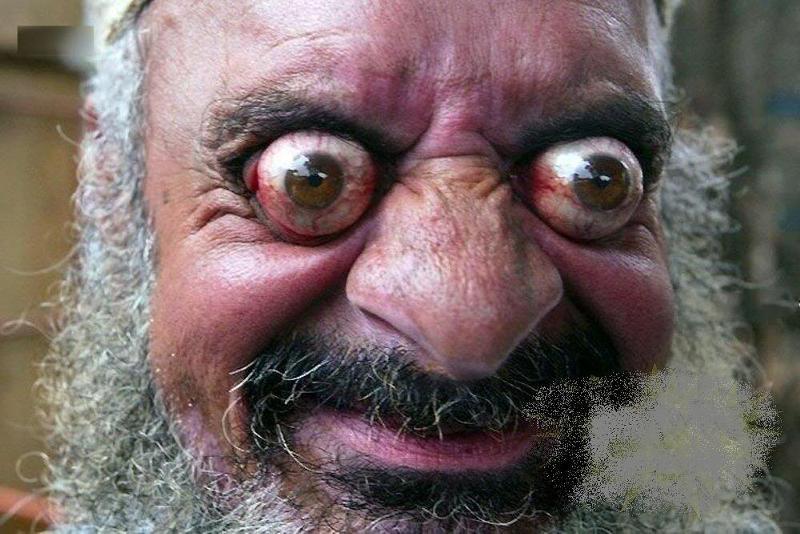 красный глаз смешная картинка этого есть специальные