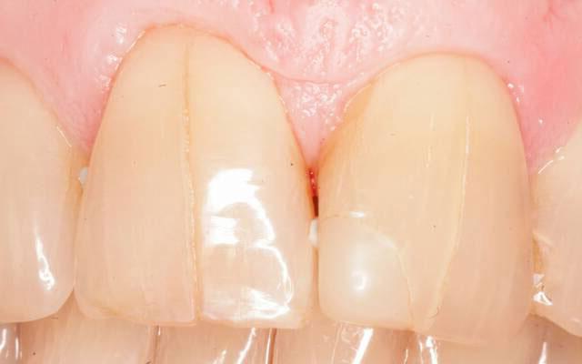 мужская женская трещина в зубе лечение ЭТАЖИ помогут подобрать