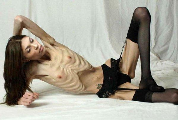modeli-anoreksichki-seks