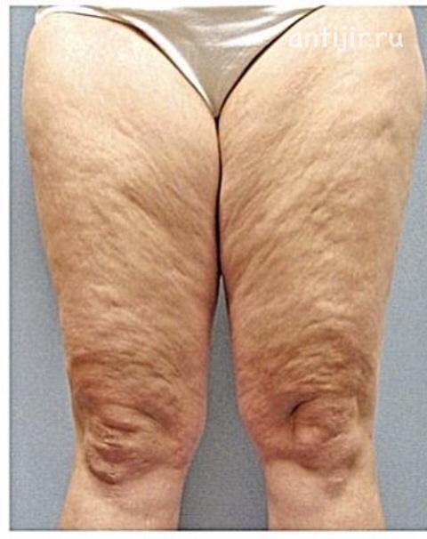 фото ноги жирных баб