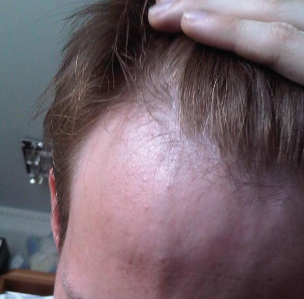 Витамины b12 и b6 для роста волос отзывы